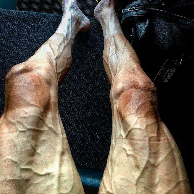 Las piernas de Poljanski tras recorrer 16 etapas en el Tour. (PAWEL POLJANSKI / INSTAGRAM)