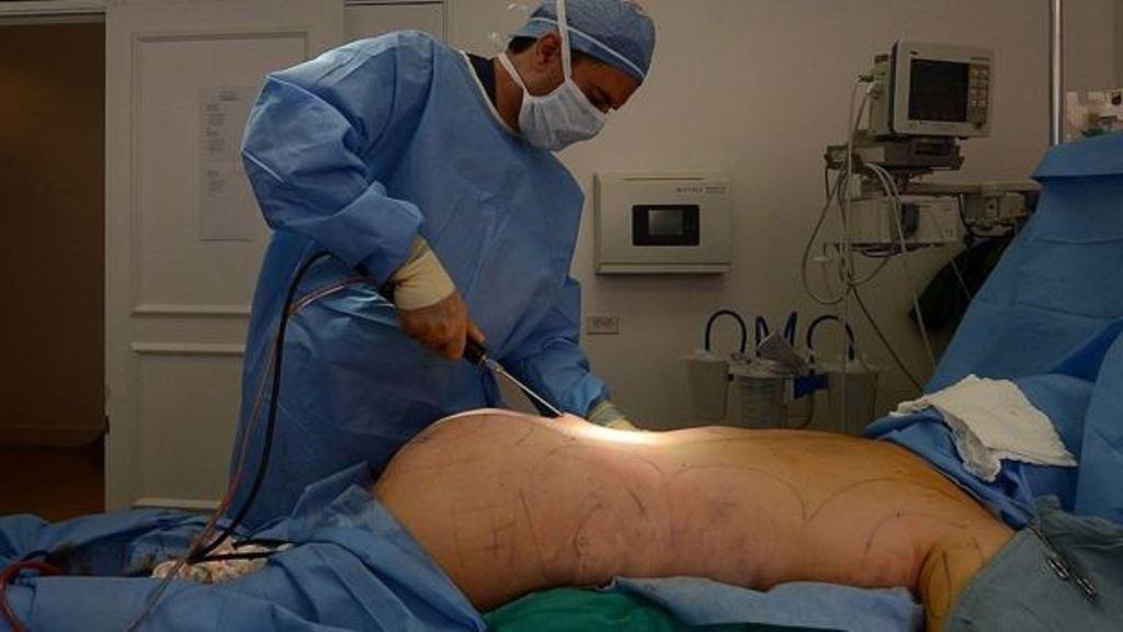 Según la ASPA, en Estados Unidos se llevó a cabo una cirugía de glúteos cada media hora de cada día. (AFP)