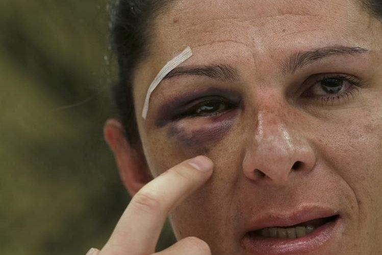 La senadora Ana Gabriela Guevara y exmedallista olímpica de México muestra a la Prensa las huellas de los golpes que recibió. (Foto Prensa Libre: AP).
