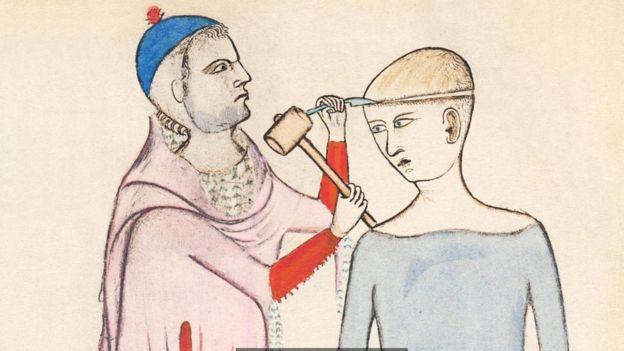 Esta pintura del siglo XIV muestra a una persona en la que se está practicando una trepanación. SCIENCE PHOTO LIBRARY